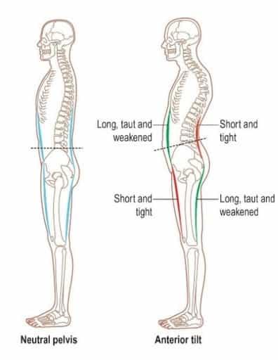 Les postures changent l'état des muscles.